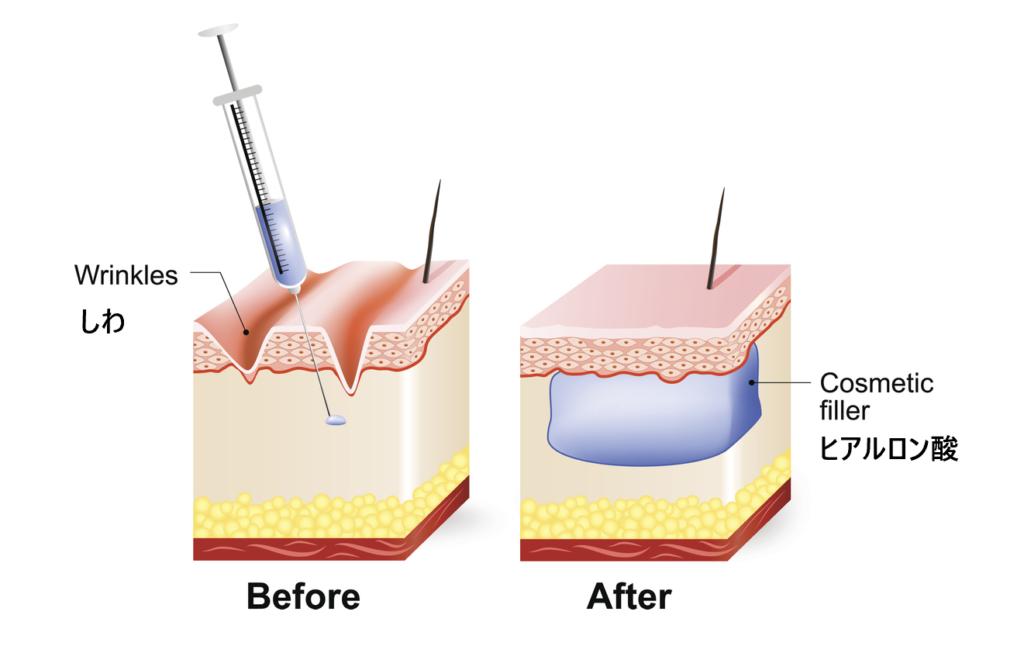 ヒアルロン酸治療後の肌