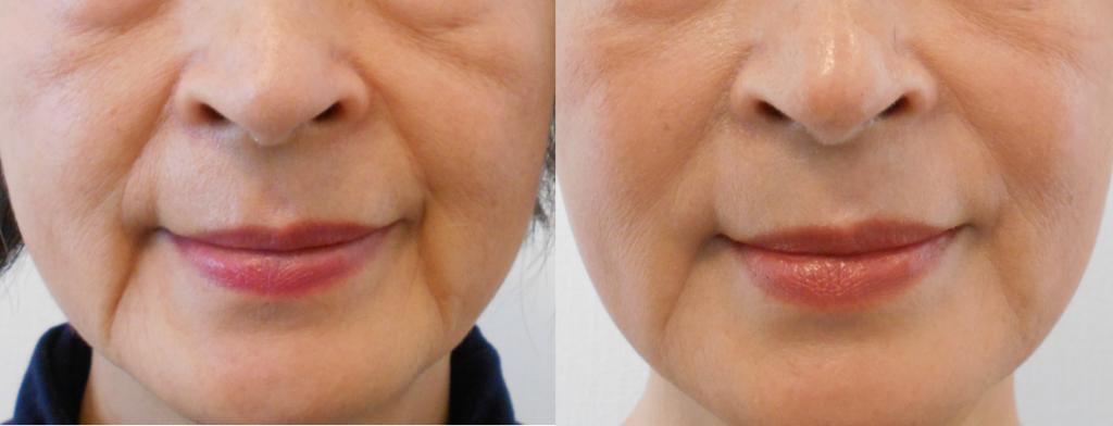 60代重度のほうれい線笑顔変化