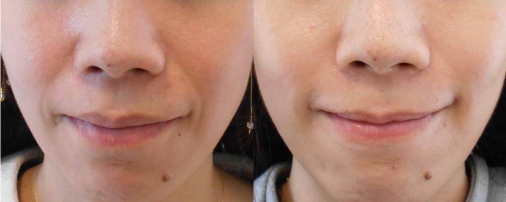 30代中等度のほうれい線笑顔変化
