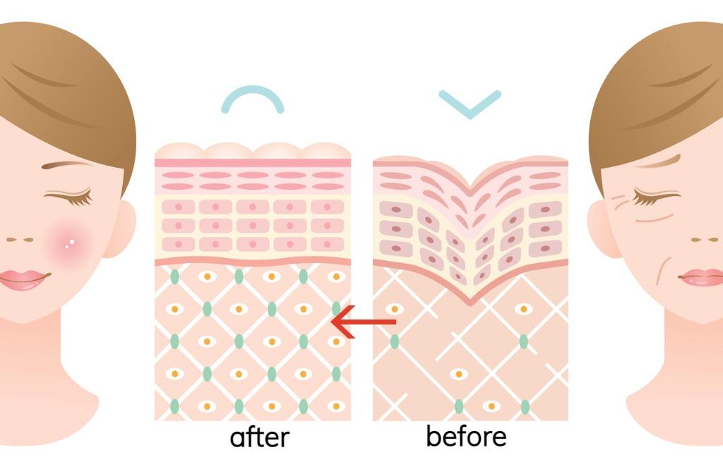 グロースファクター治療後の肌